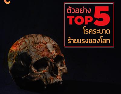 Top Five โรคระบาดร้ายแรงของโลก